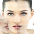 korean skin care routine for acne prone skin
